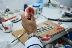 Tand- tekniker som använder en kniv med keramiska tand- implantat arkivfoto