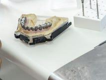 Tand- tekniker som gör en metallstruktur av en tand- krona eller Arkivfoto