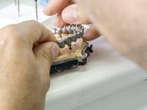 Tand- tekniker som gör en metallstruktur av en tand- krona eller Royaltyfri Fotografi