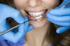Tandarts die de tanden van een patiënt in de tandarts onderzoeken stock foto