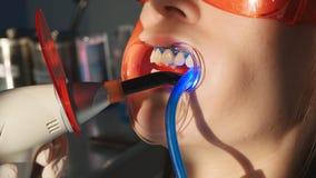 Tandarts die met tandpolymerisatielamp werken in mondholte stock videobeelden