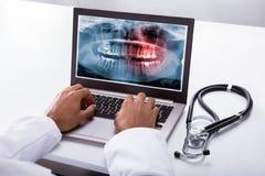 Tandarts Typing On Laptop met Tandröntgenstraal op het Scherm royalty-vrije stock afbeeldingen