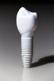 Tandbehandeling, gebitten, Tandimplant tandarts Stock Foto