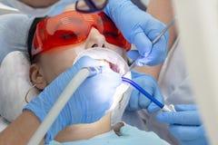 Tandbehandling, kariesbehandling bormaskin förebyggande undersökning på tandläkarekaries i tanden på överkanten av flickan fotografering för bildbyråer