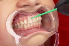 Tandblekmedelflicka p? tillv?gag?ngss?ttet av t?nder som g?r vit i det tand- kontoret arkivbilder