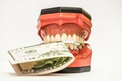 Tanddiegebitten op wit worden geïsoleerd Stock Foto