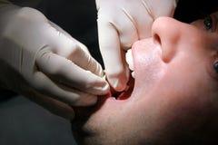 Tanddossierstrook voor tanden die, tandhygiëne schoonmaken De tandarts is tanden het schoonmaken van patiënt met tanddossierstroo Royalty-vrije Stock Foto
