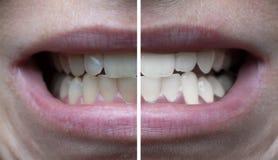 Tanden die voordien daarna witten stock foto