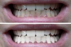 Tanden die voordien daarna witten stock afbeelding