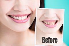 Tanden gör vit begrepp Fotografering för Bildbyråer