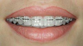 Tanden met ceramische steunen stock fotografie