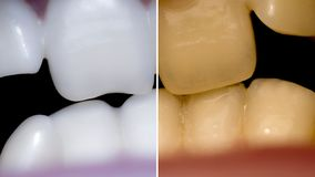 Tanden voordien daarna, Close-up van een mond met bochtige tanden en malocclusion stock fotografie