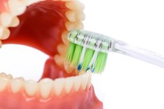 Tandenborstel en Orthodontisch die Model in tandheelkunde voor demonstratie en onderwijsdoeleinden wordt gebruikt Het borstelen v royalty-vrije stock fotografie