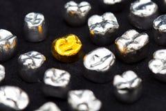 Tandgoud en metaaltandkronen op donkere zwarte oppervlakte Royalty-vrije Stock Afbeeldingen