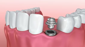 Tandimplant nauwkeurig installatieproces, medisch stock video