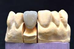 Tandimplant van porseleintanden stock afbeeldingen
