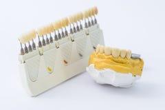 Tandkleurenscala en prothese over vorm Royalty-vrije Stock Afbeelding