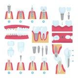 Tandkronen en inplanting stock illustratie