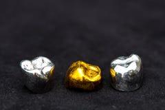 Tandkronor för tand- guld och metallpå mörk svart ytbehandlar Royaltyfri Foto