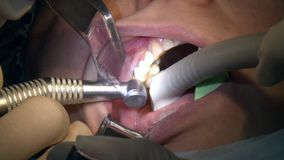 Tandläkare som använder kirurgisk plattång för att ta bort en förfalla tand arkivfilmer