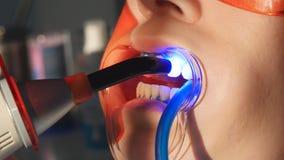 Tandläkare som arbetar med den tand- polymerisationslampan i muntligt hål stock video