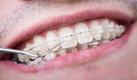 Tandläkare som kontrollerar upp tänder med keramiska konsoler genom att använda sonden på det tand- kontoret Makro som skjutas av royaltyfria foton