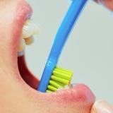 Tandläkare som visar en kvinna hur man borstar hennes tänder Royaltyfri Foto