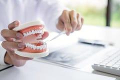 Tandläkarehandinnehav av käkemodellen av tänder och lokalvård som är tand- med det tand- hjälpmedlet fotografering för bildbyråer