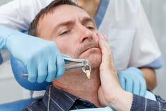Tandläkaren har dragit ut en sjuk tand från patient i tand- kontor Arkivfoton