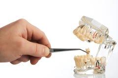 Tandläkaren räcker drar ut en tand med tand- kirurgisk tång royaltyfria foton