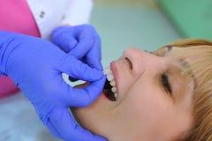 Tandläkaren sätter tålmodiga tand- fanér royaltyfria foton