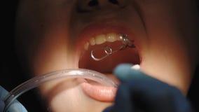 Tandl?kare som g?r en tand- behandling p? en kvinnlig patient arkivfilmer