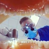 Tandläkare med öglor som borrar tänder Arkivfoton