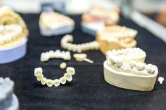 Tandprotesbehandling, closeup för tand- implantat Royaltyfri Bild