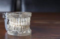 Tandprotesmodell med den klara formen Arkivfoto