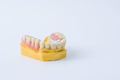 Tandprothese over een vorm Stock Fotografie