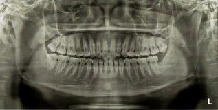 Tandröntgenfotoröntgenstraal Stock Foto's