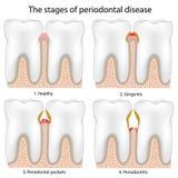 tandrot- sjukdom vektor illustrationer