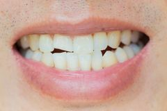 Tandskador eller tänder som bryter i man Trauma och nervskada av den sårade tanden fotografering för bildbyråer