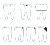 Tandsymbool. Vectorreeks tandenpictogrammen die op blauwe achtergrond wordt geïsoleerd stock illustratie