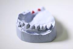 Tandtandartsvoorwerpen Stock Foto's