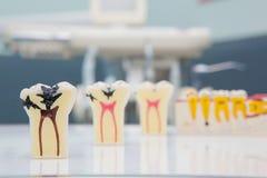 Tandtanden Model en tandhulpmiddel Royalty-vrije Stock Foto