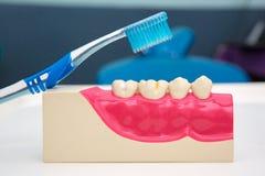 Tandtanden Model en tandhulpmiddel Royalty-vrije Stock Foto's