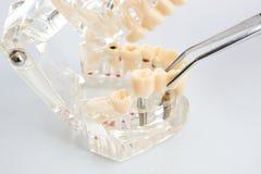 tandtechnicus die het vaste gedeeltelijke gebit plaatsen royalty-vrije stock afbeeldingen