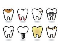 Tanduppsättning Arkivfoton