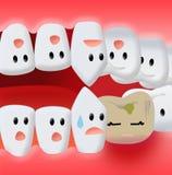 Tandvärk vektor illustrationer