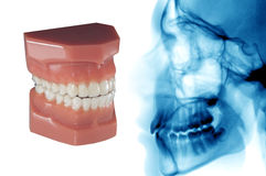Tandzorg: onzichtbare orthodontische aligner en cephalometric röntgenstraal Royalty-vrije Stock Foto's
