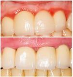 Tangente lustrando dos dentes e com ombro Imagem de Stock Royalty Free
