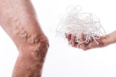 A tangle of ropes with a man being ill with varicose veins of th Stock Photo