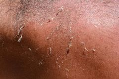 Tanned human skin with sunburns, close up. Tanned human skin with light sunburns, macro shot Stock Photo